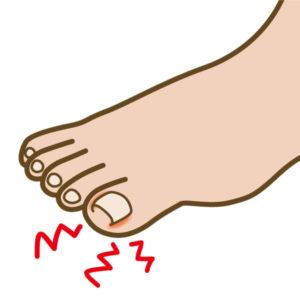 高齢者の「爪」の観察 ~正しい爪切りで「巻き爪」の予防を~